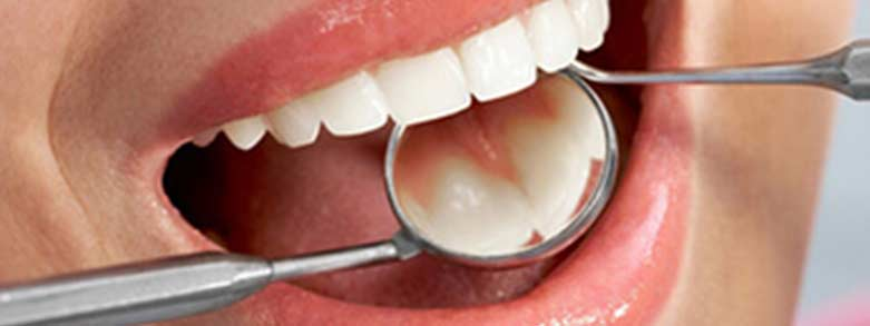 Gallery dental image