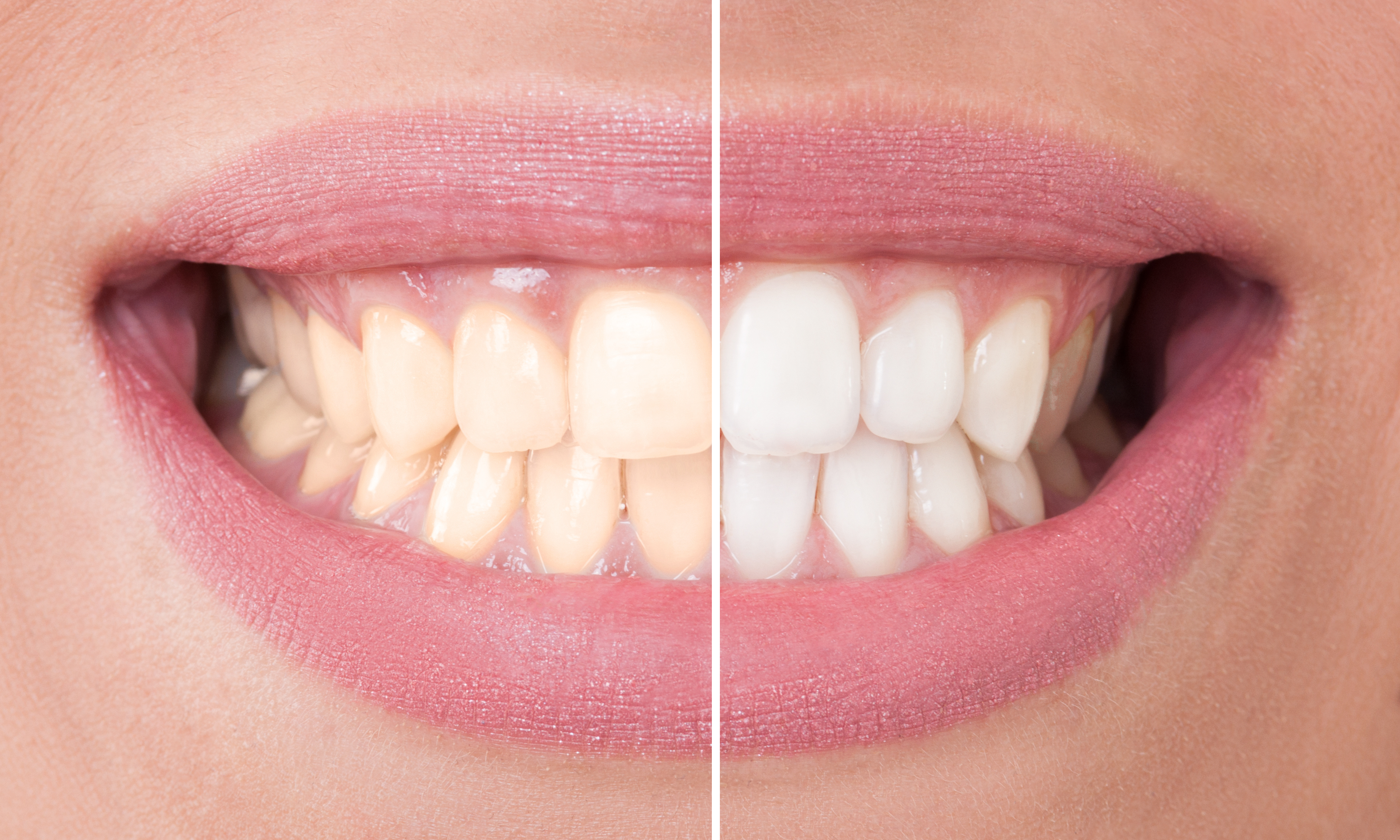 Want to get a whiter smile?