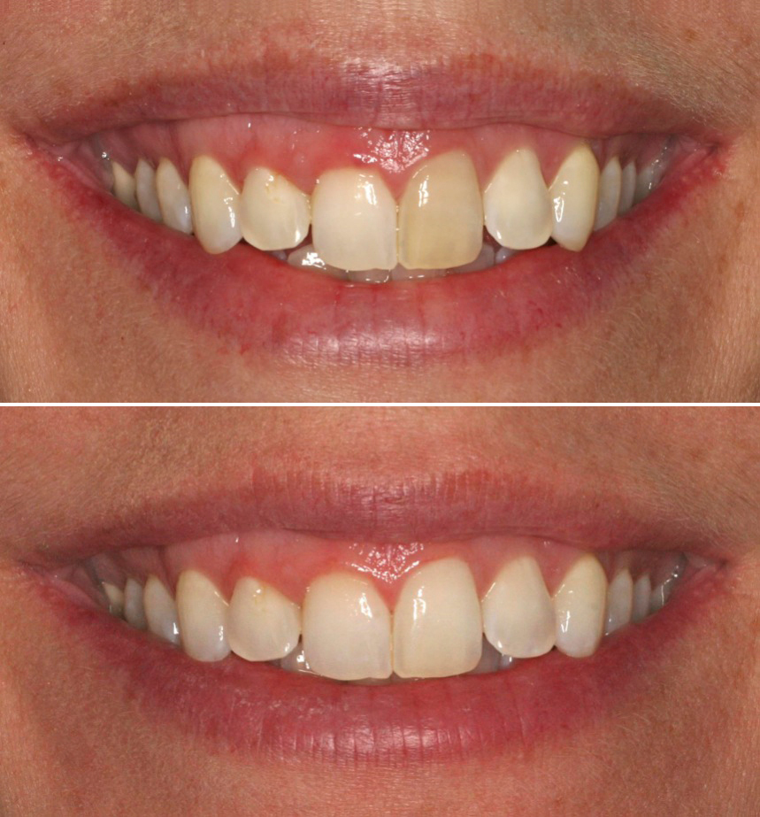 Bleaching of single tooth